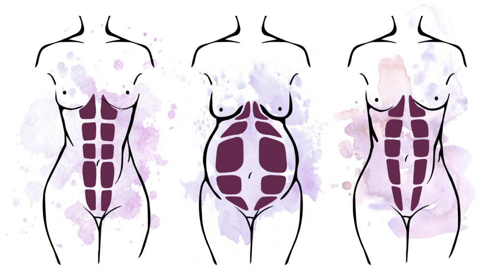 Anatomie Bauchmuskulatur mit Rektusdiastase